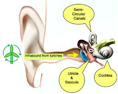 Inner-ear-fixed-2 noise